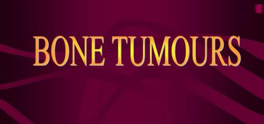 Home Remedies for tumour,bone cancer,